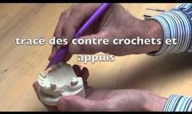 Thumb etude de l insertion en prothese partielle amovible coulee?1563274536