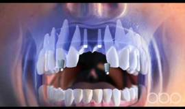 Thumb dental implant 3d medical animation?1474878240