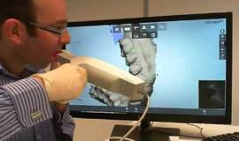 Thumb intra oral scanning with 3shape trios?1563273687