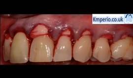 Thumb alloderm surgical video for gum recession grafting root coverage upper teeth?1563273670