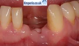 Thumb dental implant and grafting in advanced periodontal disease case?1476201344