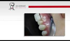 Thumb gingivectomie?1563273650