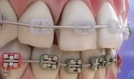 Thumb appareil dentaire parties et fonction de l orthodontie?1563273647