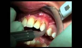 Thumb philips lasers gingivectomie wmv?1480438869