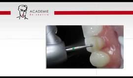 Thumb preparation de facettes?1484556794