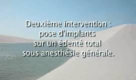 Thumb soins dentaires sous sedation par le chirurgien dentiste?1486198462