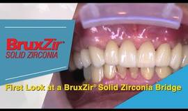 Thumb a first look at a bruxzir solid zirconia bridge to replace a failed pfm roundhouse bridge?1563273624