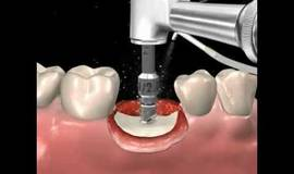 Thumb step by step dental implant surgery gary r o brien d d s?1492421140