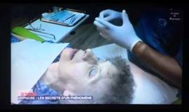 Thumb anesthesie dentaire sous hypnose?1495482827