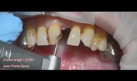 Thumb smile design cad cam pag et strategie prothetique?1500212286