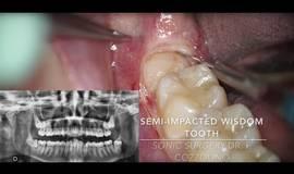 Thumb horizontal semi impacted wisdom tooth sonic vs piezosurgery dr fabio cozzolino zerodonto?1500212531