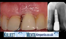 Thumb removal of failed dental implant?1502311354