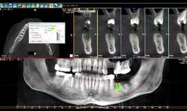 Thumb 3 whitefox cone beam software placing implant?1502831141