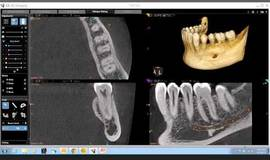Thumb cbct anatomical review of the mandible?1502831421