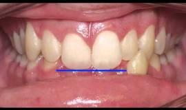 Thumb anterior crossbite correction kyger orthodontics?1563273605