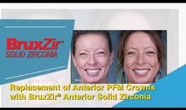 Thumb replacement of anterior pfm crowns with bruxzir anterior solid zirconia crowns?1523088651