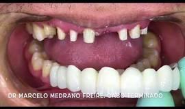 Thumb carillas y coronas de porcelana dr marcelo medrano freire?1563273590