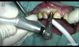 Thumb chirurgie implantaire mini invasive pose d implant sans ouvrir la gencive?1549384123