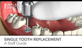 Thumb single tooth replacement staff guide?1575188761