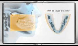 Thumb la cs 8100 de carestream dental?1576920555
