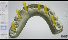 Thumb fabrication of the bruxzir full arch implant prosthesis vol 1 issue 2?1577349743