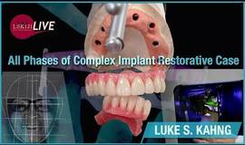 Thumb all phases of complex implant restorative case?1579035140