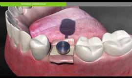Thumb biotech dental protocole chirurgical de pose d un implant dentaire kontact sous crestal?1580810967