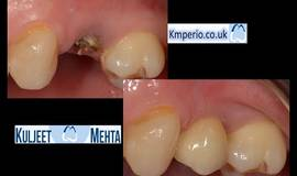 Thumb anyridge implant placement with digital planning?1584875187