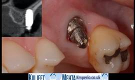 Thumb removal of dental implant upper left molar?1584875233