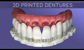 Thumb why digital dentures make great provisionals how to characterize digital dentures?1596878862