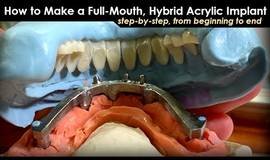 Thumb how to make a full mouth hybrid acrylic implant step by step from beginning to end?1602094243