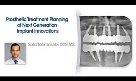 Thumb prosthetic treatment planning of next generation implant innovations?1612185874