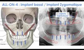 Thumb all on 4 implant basal et implant zygomatique?1621258134