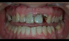 Thumb dental composite restoration?1563274443