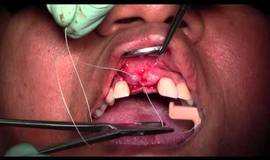 Thumb lateral ridge augmentation maxillary anterior region mineross memlok full video?1474879278