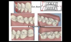 Thumb ortho 4 analyse occlusale informatique et articulateur?1474879365