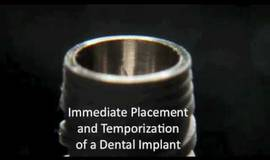 Thumb explicit dental implant immediate placement?1474879374