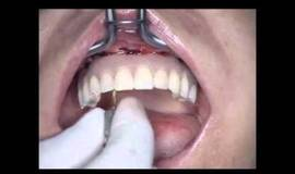 Thumb seattle all on four dental implants lance timmerman dmd?1474877980