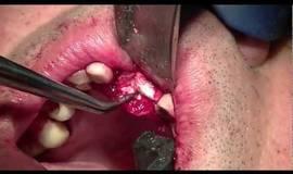 Thumb bone block graft part 2?1474877982