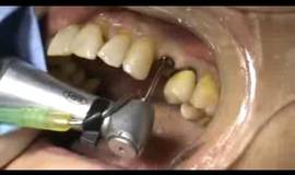 Thumb flapless implant placement in the aesthetic zone 1 month after tooth extraction?1474879444