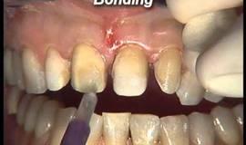 Thumb ceodont estetica dental carillas de porcelana cementado malposiciones?1563274370