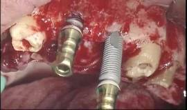 Thumb maximini implants twinkon elevation de sinus greffes?1474879486