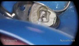 Thumb bc sealer obturation tooth 18?1563274327