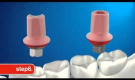 Thumb mis implants nl reverse abutment?1474879633