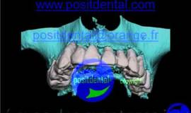 Thumb implant dentaire mise en charge immediate positental wmv?1474878006