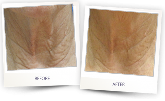 Skin Remodeling Abclaser