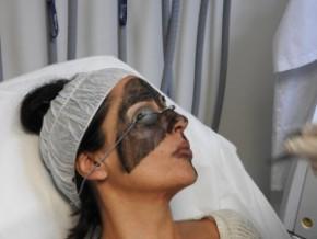 Carbon peel treatment | Alma Lasers