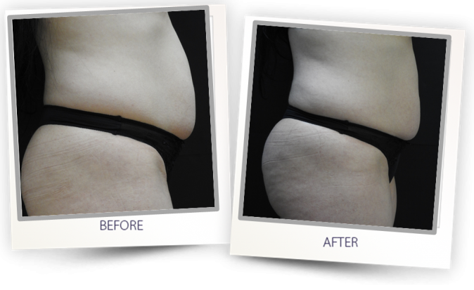 Accentuate skin tightening