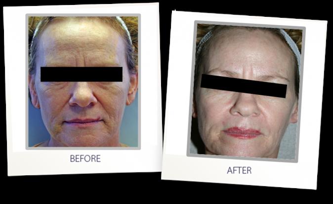 Skin Resurfacing CO2
