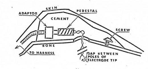 Un schéma du dispositif de harnais à électrodes utilisé pour contrôler les chiens
